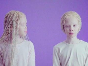 Lara y Mara Bawar, las gemelas albinas que causan furor en el mundo de la moda