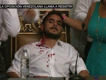 Diputado venezolano ensangrentado