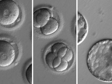 Embriones humanos a los que se aplicó la técnica CRISPR (Archivo)