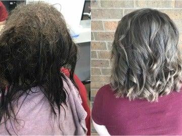 El antes y el después de la joven
