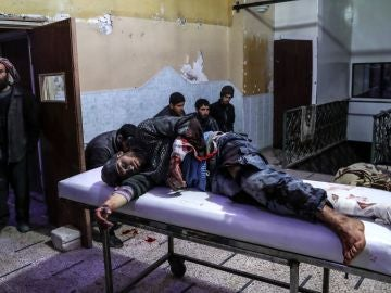 Un hombre herido tras un bombardeo al este de Guta