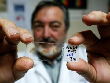 El director del departamento de Neurociencias, Salvador Martínez, muestra una placa con muestras de médula espinal enferma de ELA