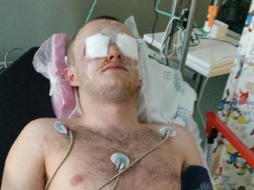 Imagen del joven escocés que recibió un disparo en los ojos con una pistola de pintura en Magaluf