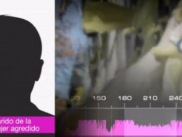 Habla el marido de la mujer agredida por quitar lazos amarillos en Barcelona