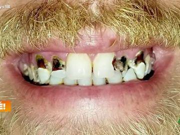 Un hombre se emociona al descubrir su nueva boca