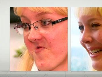 Anelia Myburgh antes y después de la operación