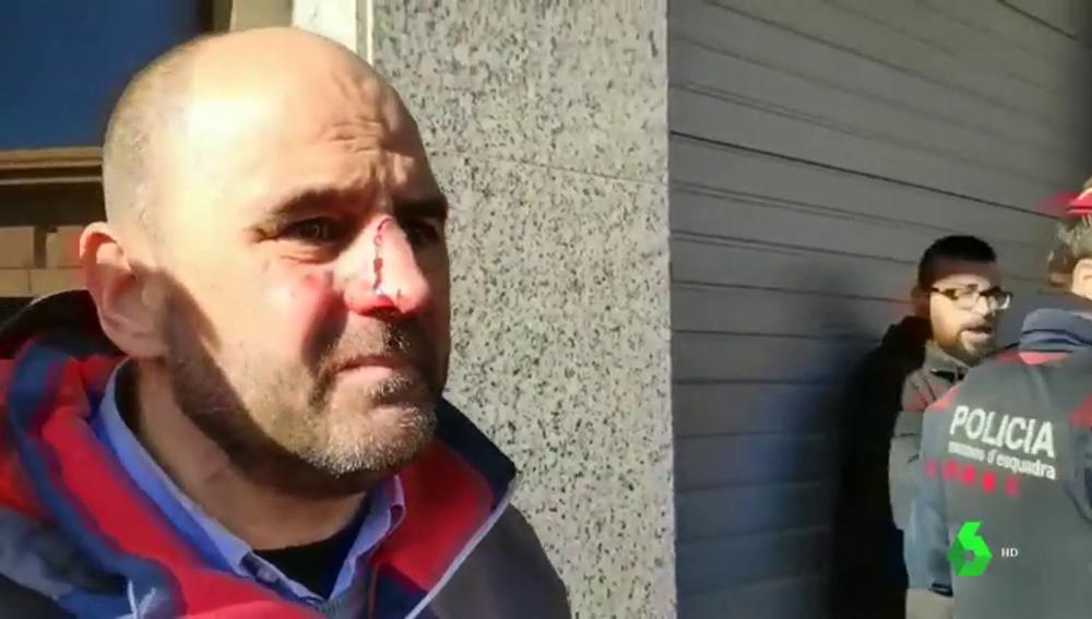 Imagen de un militante de Ciudadanos supuestamente agredido por independentistas
