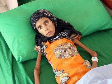 Fatima, con 12 años, sólo pesa 10 kilos