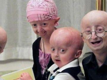 Hallan una terapia contra la progeria, la enfermedad que envejece a los niños