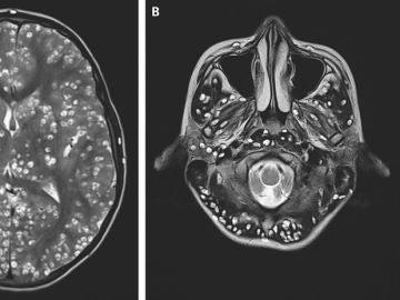 Cerebro del joven infectado con gusanos