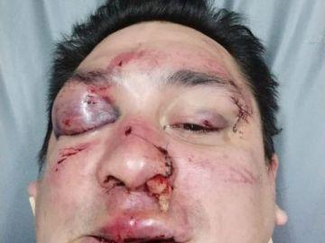 El periodista Sebastián Acosta, tras ser agredido