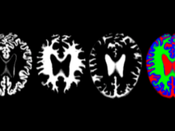 imágenes de resonancia de cerebros con alzhéimer