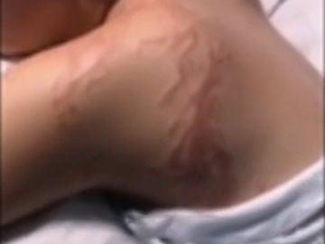 Una joven sufre la brutal picadura de una carabela portuguesa en Murcia