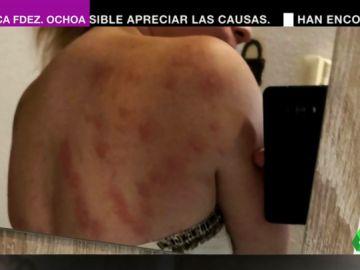 Los vecinos de Elche denuncian una agresiva plaga de insectos