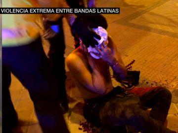 Uno de los heridos en la reyerta entre bandas en el distrito madrileño de Vallecas