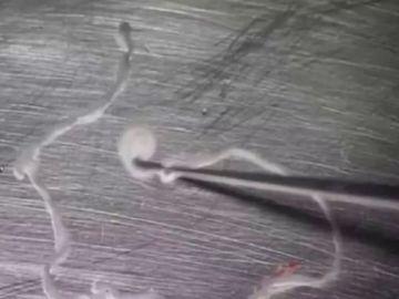 Imagen de la tenia de 12 centímetros que llevaba 15 años comiéndose el cerebro de un hombre