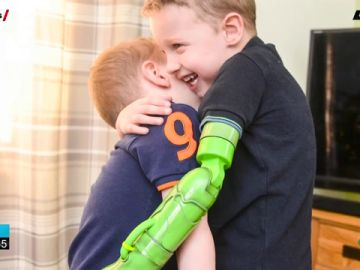El primer abrazo de un niño de cinco años a su hermano tras ponerle una prótesis en el brazo