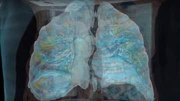 Imagen de unos pulmones afectados por coronavirus (Archivo)