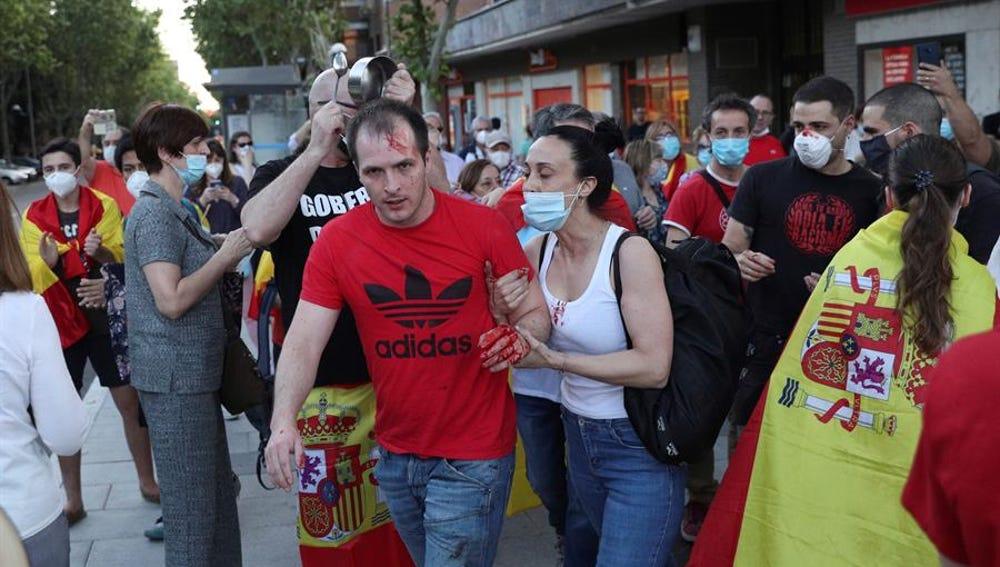 Imagen del hombre herido durante las protestas en el barrio de Moratalaz