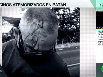 """Palizas, amenazas y pánico en Batán, un barrio donde crece la violencia: """"Me rajaron el cuello con una botella"""""""