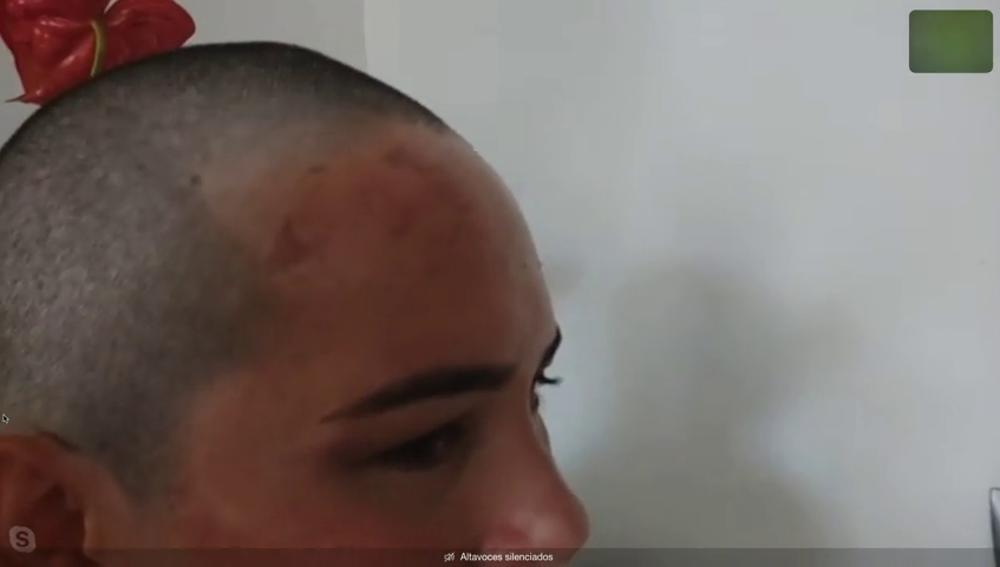 Atacan a una mujer poniéndole un gorro impregnado con pegamento abrasivo en su casa de Valencia