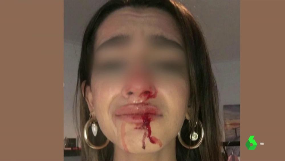 """Una joven trans sufre una brutal paliza al grito de """"puto travelo"""" y """"engendro"""" a las puertas de su casa en Barcelona"""