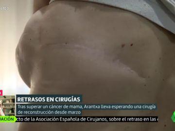 """Arantxa, a la espera de una reconstrucción de mama desde marzo: """"No es una cuestión psicológica, es vida"""""""