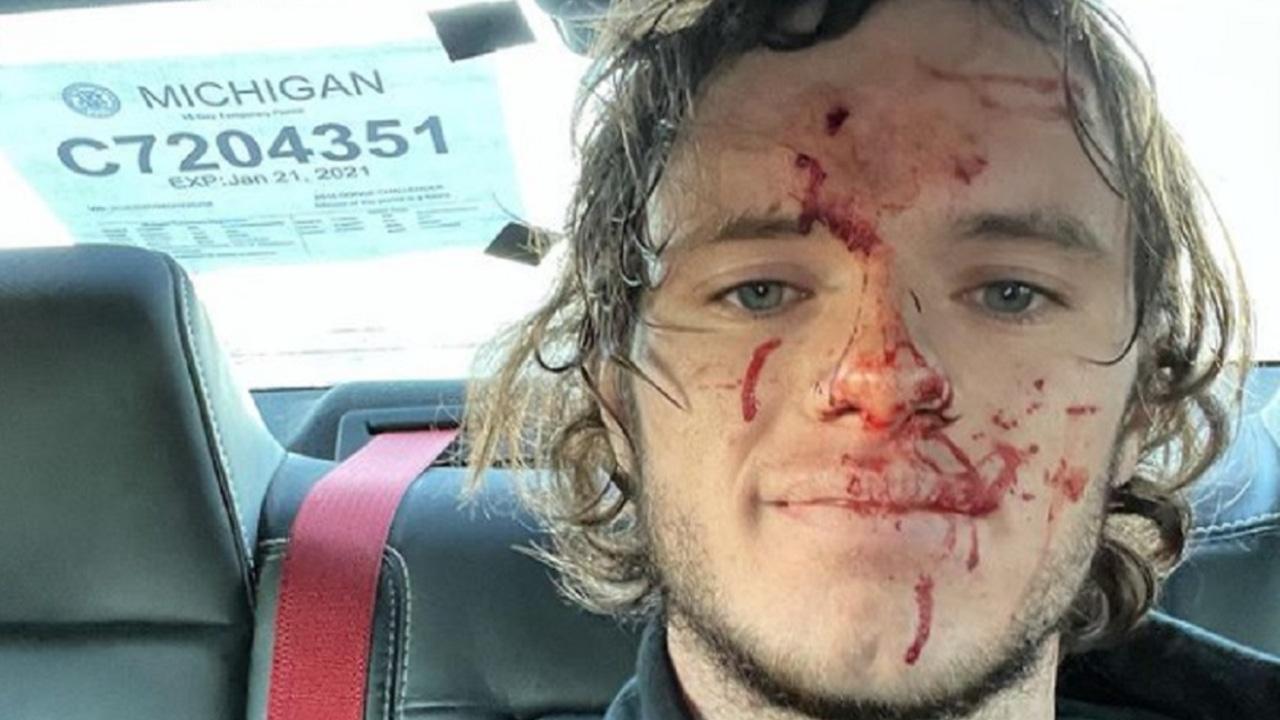 Imagen del youtuber estadounidense que se disparó accidentalmente en la cabeza