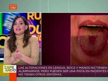 Llagas en la boca y la lengua, nuevo síntoma del COVID: Boticaria García te da las claves