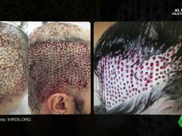 Las impactantes imágenes de graves infecciones o cicatrices irreversibles en pacientes de trasplantes capilares por mala praxis
