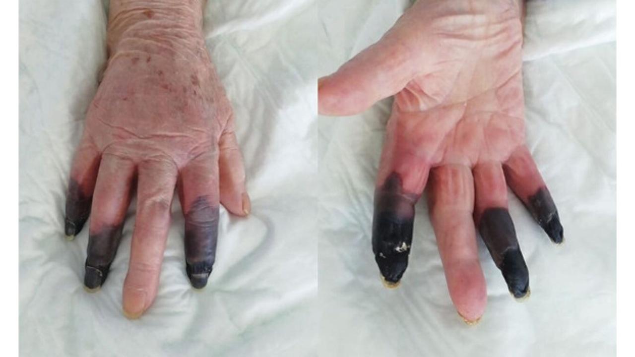 Una mujer italiana de 86 años desarrolla gangrena en los dedos por el coronavirus