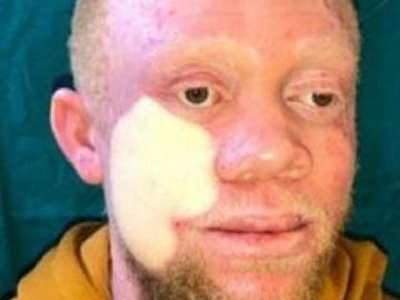 Imagen del joven intervenido de un extenso cáncer de piel en la cara