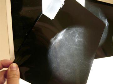 Sanidad indemnizará con 30.000 euros a una mujer por el retraso de cinco meses en el diagnóstico de un cáncer de mama