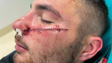 """La brutal agresión con cuchillo de un menor a un 'rider' por defender a una joven: """"Lo volvería a hacer"""""""